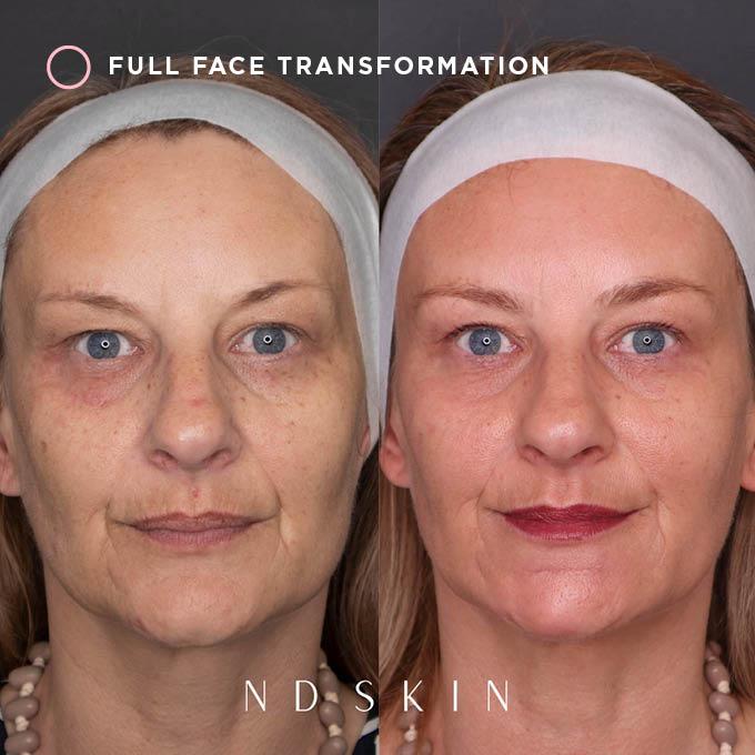 Full face transformation
