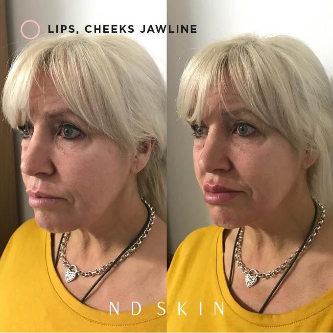 Lips, cheeks, jawline