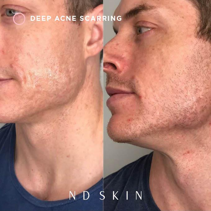 Deep acne scarring