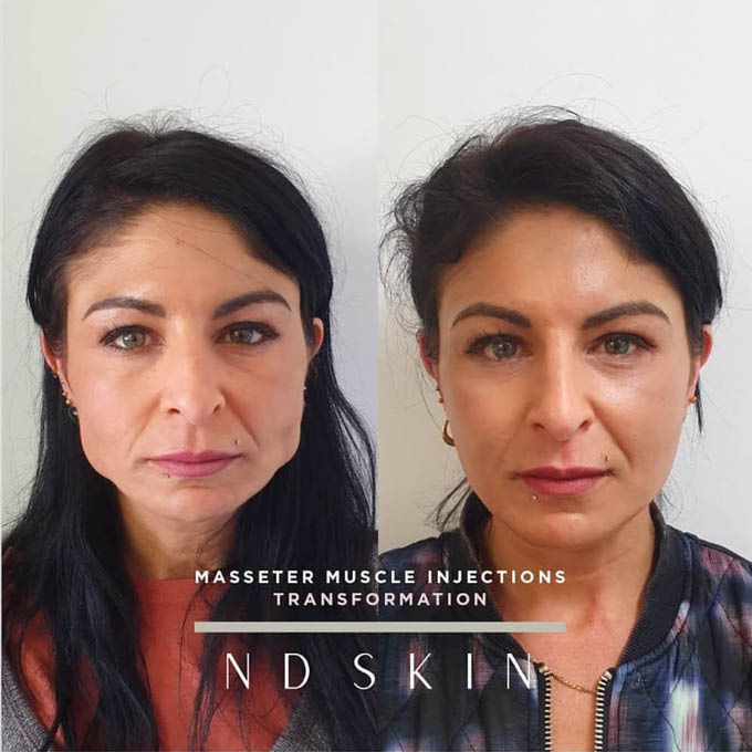 Masseter muscle injection transformation
