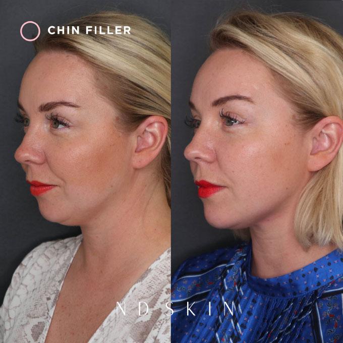 ND Skin - Chin Filler