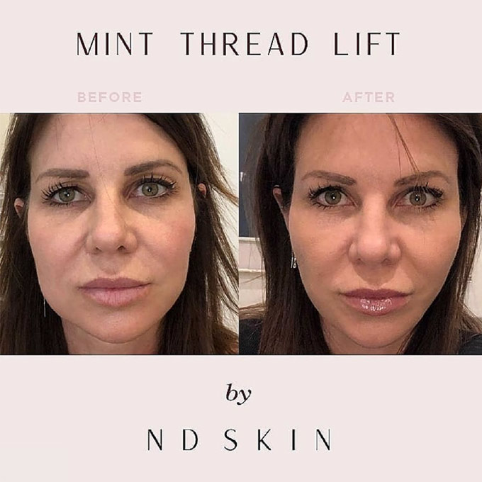 MINT THREAD LIFT Before and After