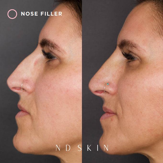 ND Skin - Nose Filler