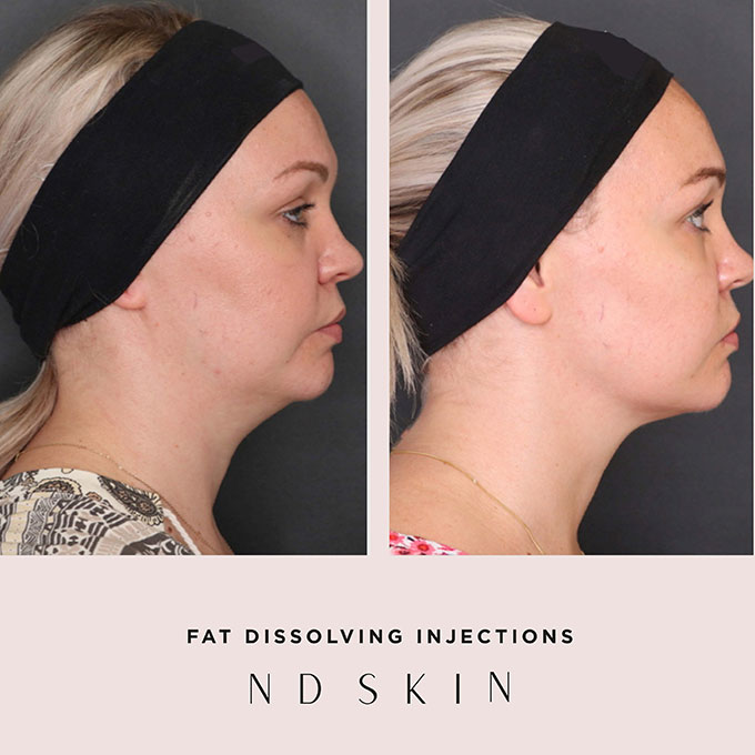 Before and After fat dissolving injections