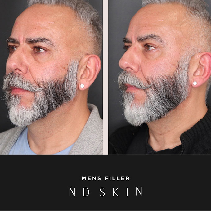 Before and After mens filler