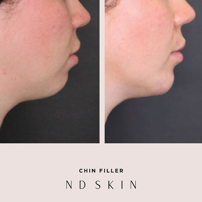 Before and After chin filler