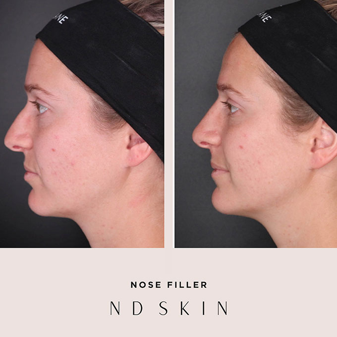 Before and After nose filler