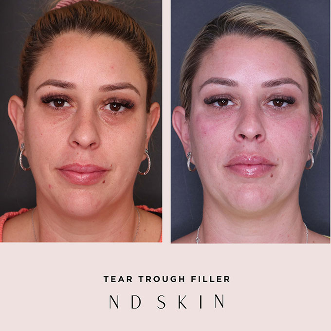 Before and After tear trough filler