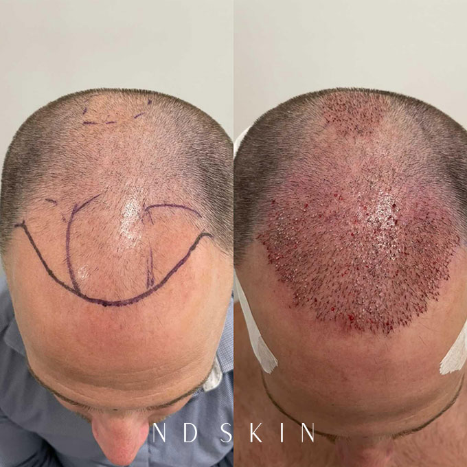 Before and After NeoGraft