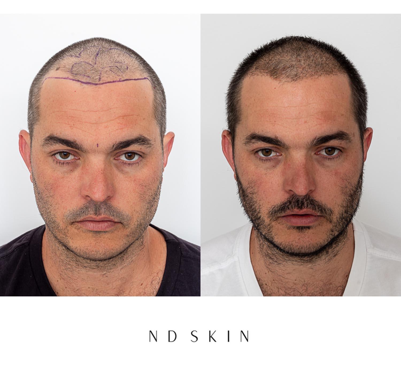 NeoGraft - ND Skin